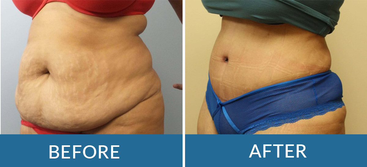 Before and after photos of a woman following abdominoplasty surgery with brain and spine surgeons of new york