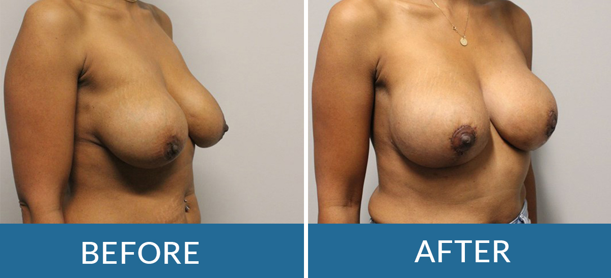 before and after photos of a woman having breast lift surgery with brain and spine surgeons of new york