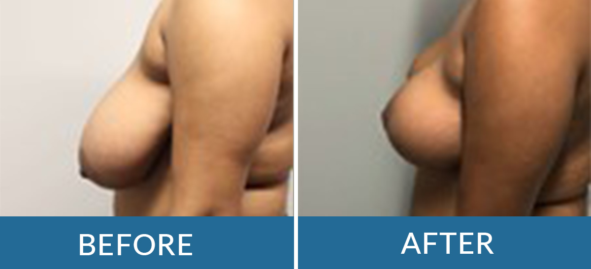 before and after photo of a woman having breast reduction surgery