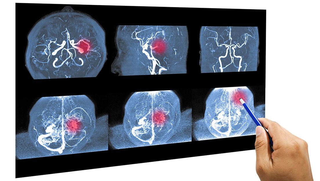 MRI of a brain aneurysm