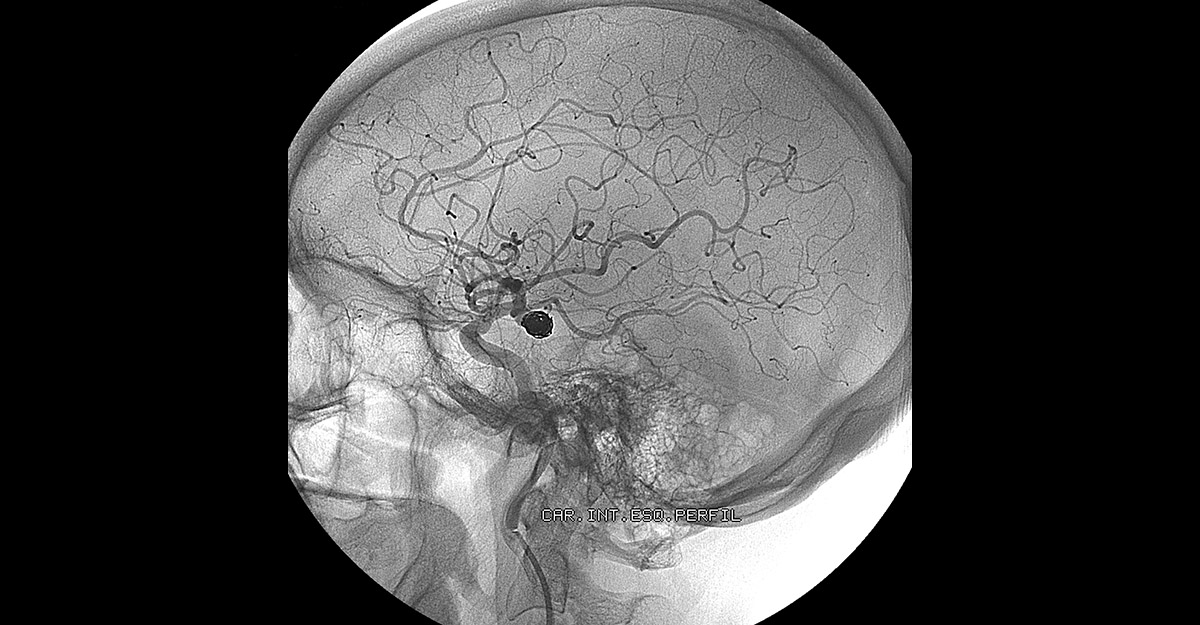 X-ray of an Endovascular Embolization