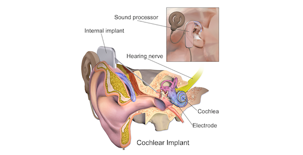 medical illustration depicting cochlear implant surgery