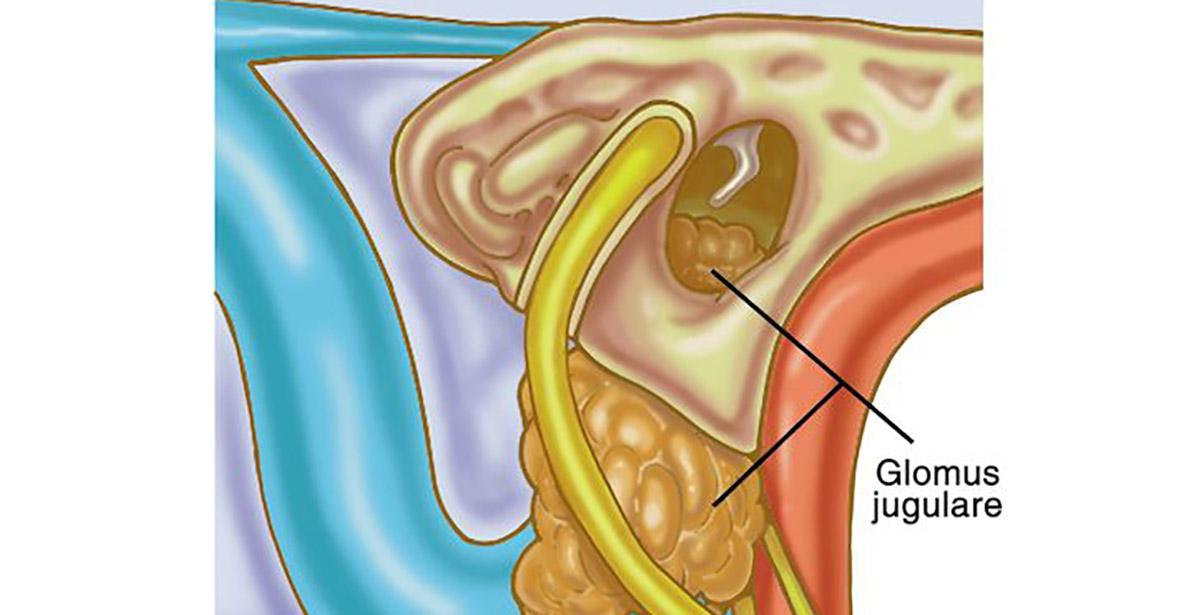 glomus tumor illustration