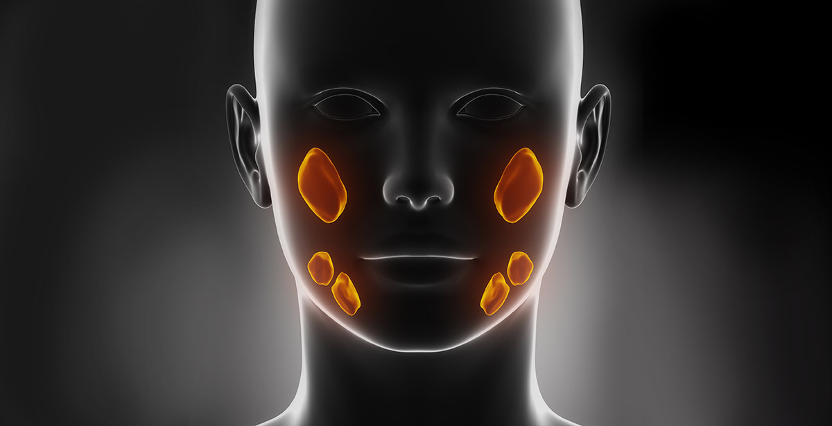 3D illustration of salivary gland tumors