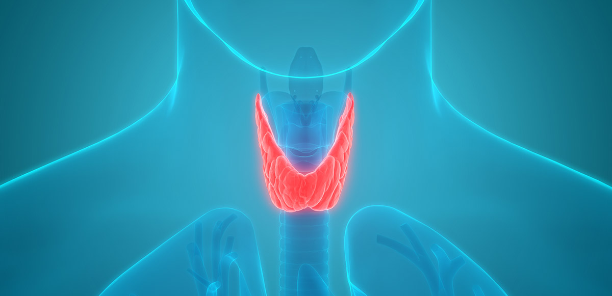 3D illustration of thyroid gland tumors