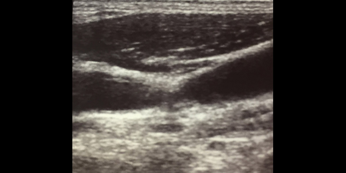 Sonogram of plaques causing stenosis of the carotid artery.