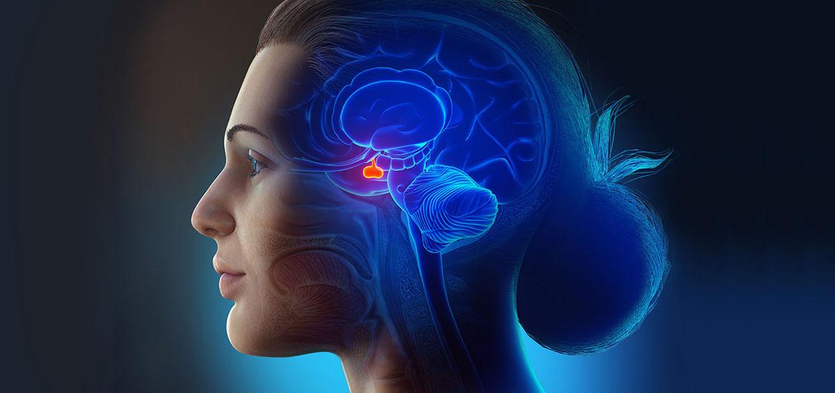 3d illustration of Craniopharyngioma