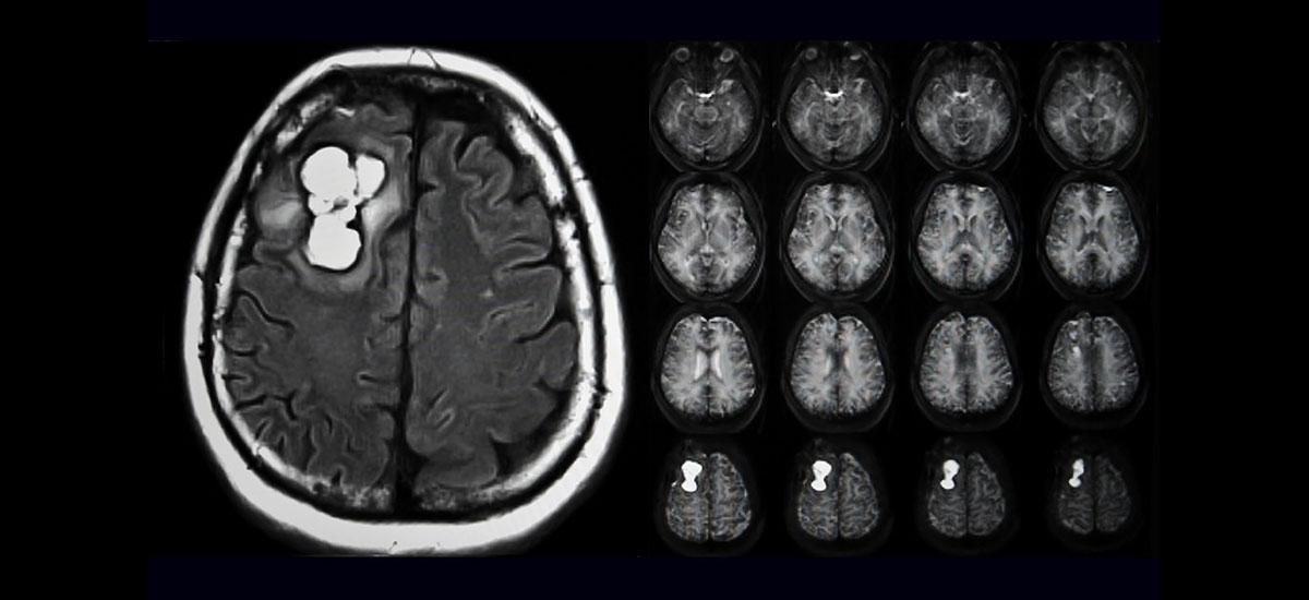 MRI of Glioblastomas