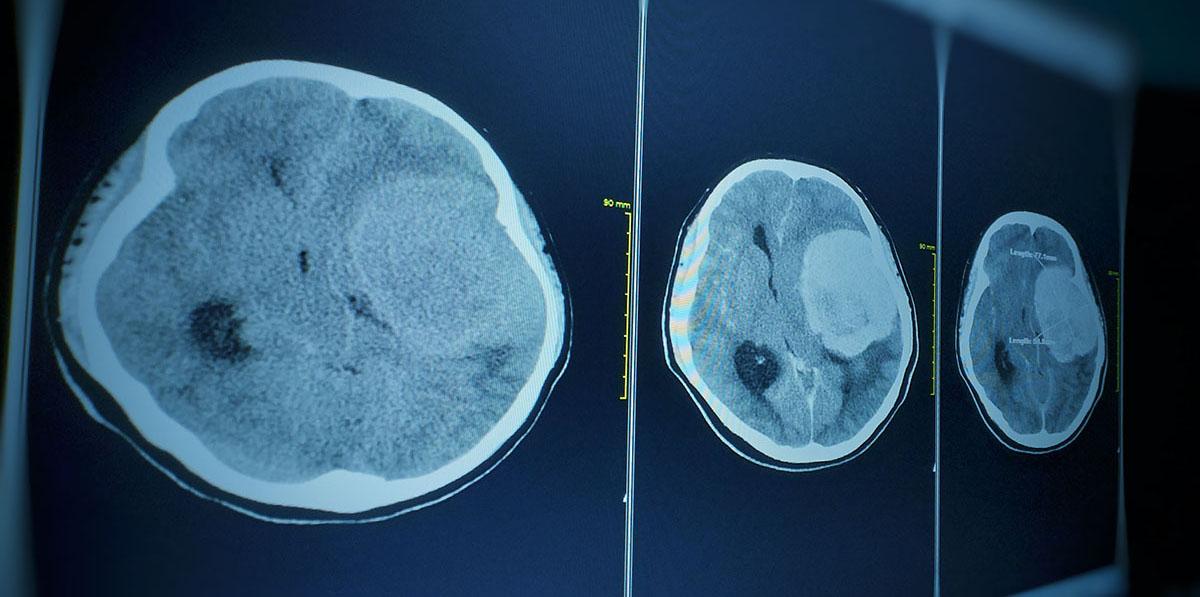 CT brain scan of Meningiomas