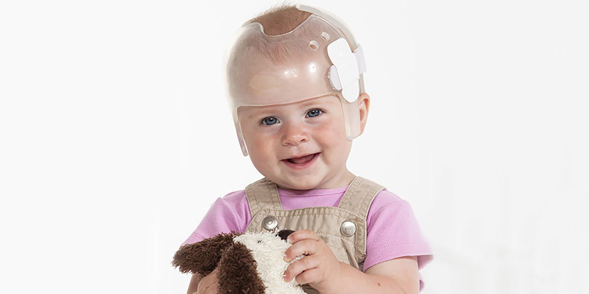child with Craniofacial Syndromes