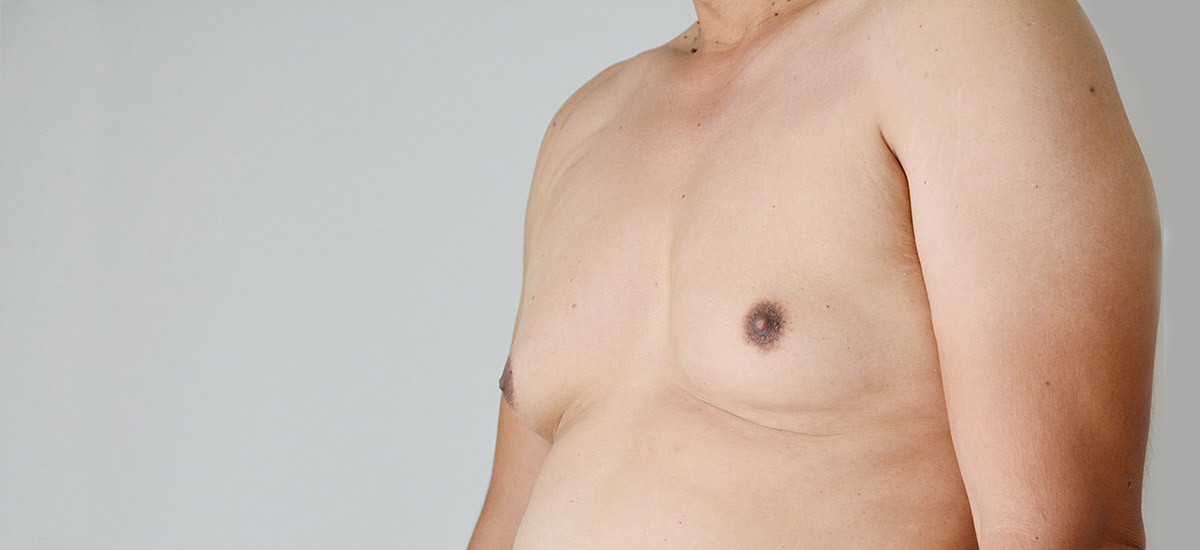 man with gynecomastia