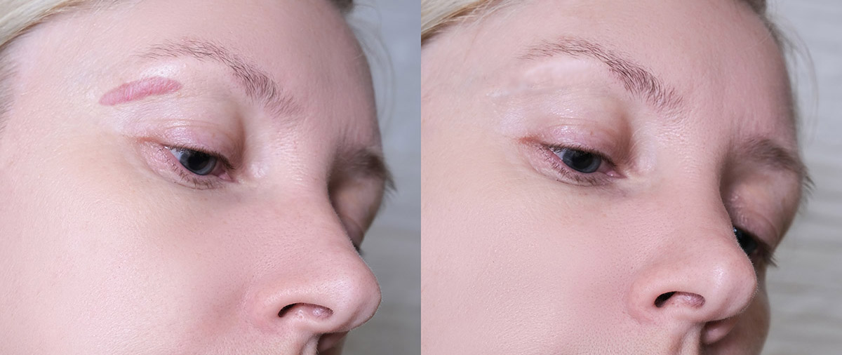 woman after scar revision