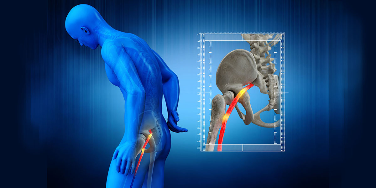 3d medical illustration of a man with sciatica