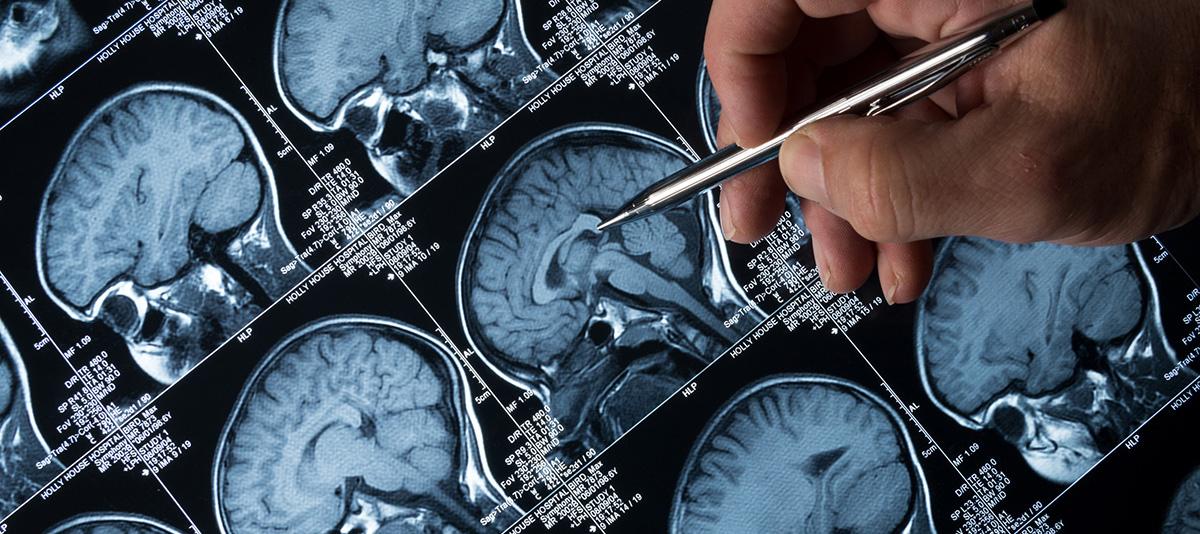 Seizure Focus Surgery