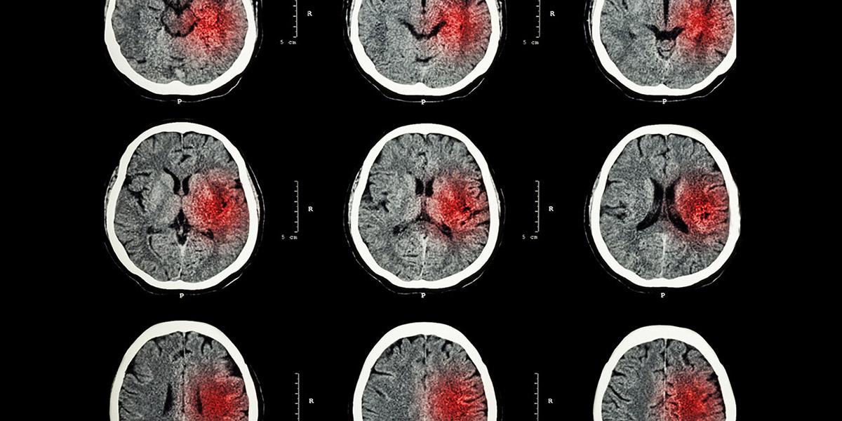 MRI of stroke brain with hemorrhaging